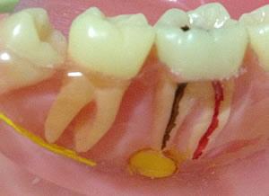 痛い ない 虫歯 じゃ が 歯